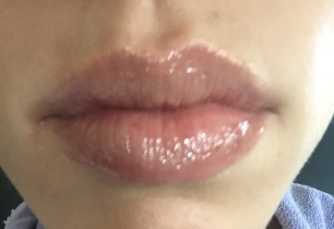 PerfectPout-After